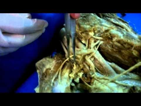 Czy Borodin operację powiększania piersi