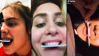 The DIY TikTok Trend of Teeth-Filing Is Horrifying Dentists