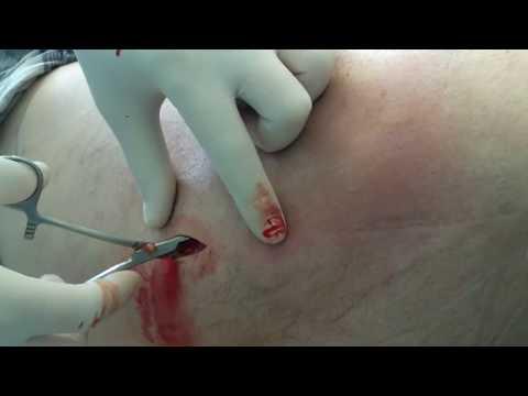 Гепатит с анализы минск