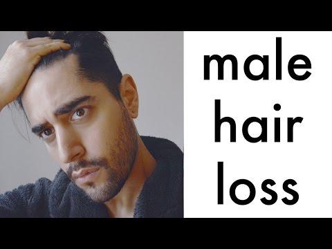 Batang 4 na taong hair fall out