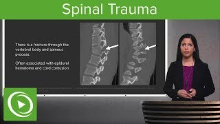 Spinal Trauma: Cervical Trauma Protocol, Common Spinal Fractures – Radiology | Lecturio