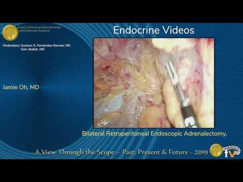 Obustronna zaotrzewnowa adrenalektomia laparoskopowa