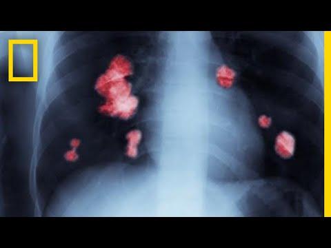 Pancreatic cancer uk symptoms