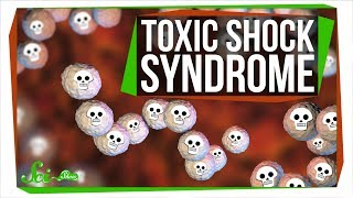 Toxic Shock Syndrome: Way Beyond Tampons
