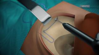 SYNCHRONY PIN Cochlear Implant Surgical Guidelines