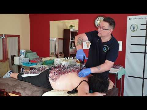 Csípőízületi gyulladások