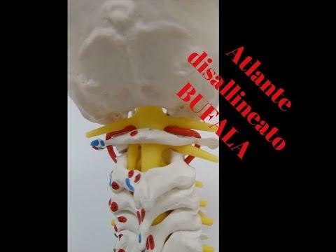 Fase osteocondrosi della malattia