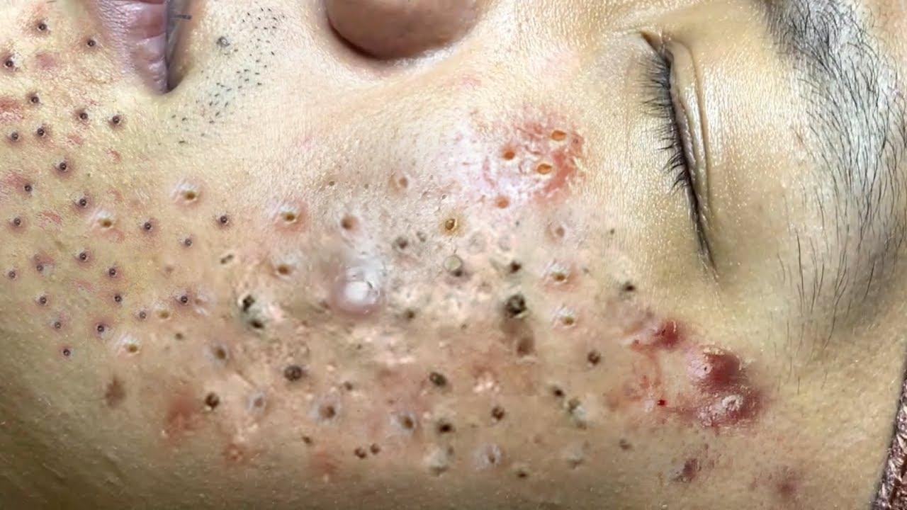 Loan Nguyen Acne Treatment # 194 thumbnail