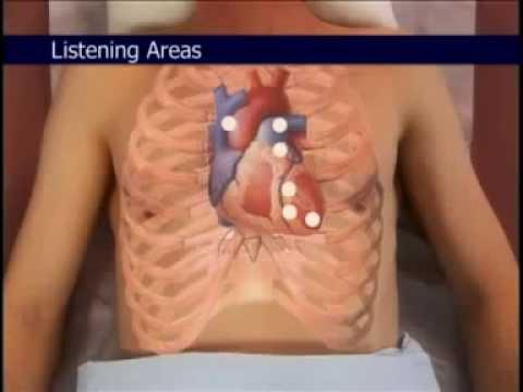 Standarde de tratament pentru hipertensiune