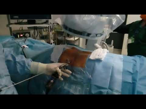 Taglio cesareo le conseguenze del mal di schiena