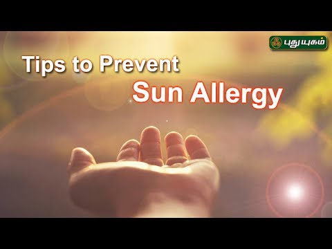 Tips to prevent Sun Allergy | Morning Cafe | 17/07/2017