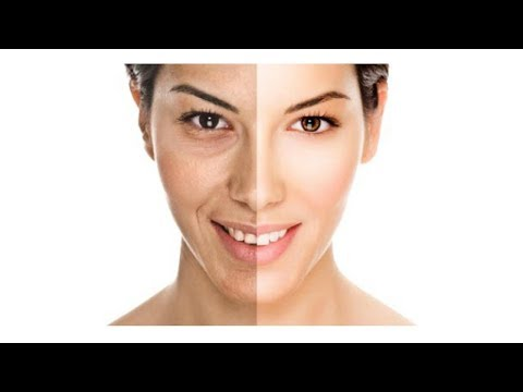 I cosmetici coreani che candeggiano pigmentary posti