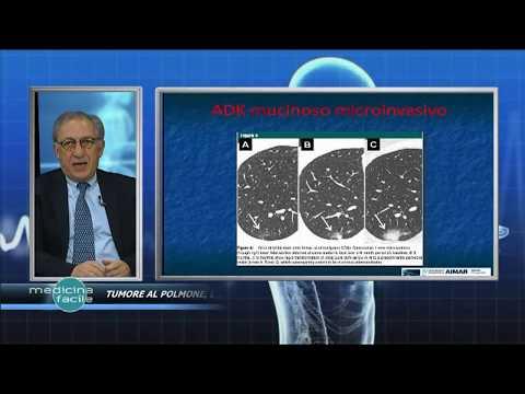 Adenoma prostatico può abbinare glutei