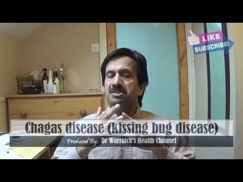 Video Chagas Disease (American Trypanosomiasis or Kissing Bug Disease) : Causes, Symptoms, Treatment