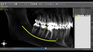 Video: come isolare in 3D il nervo alveolare in 20 secondi con un software gratuito