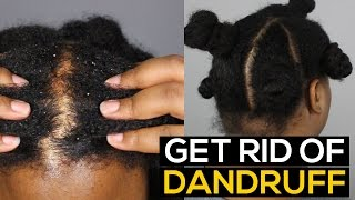 How To Get Rid of DANDRUFF PERMANENTLY & FAST   Ammina Rose
