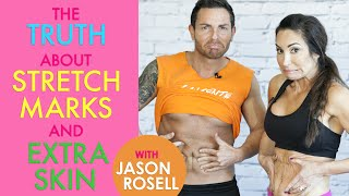 The TRUTH about stretch marks & extra skin!