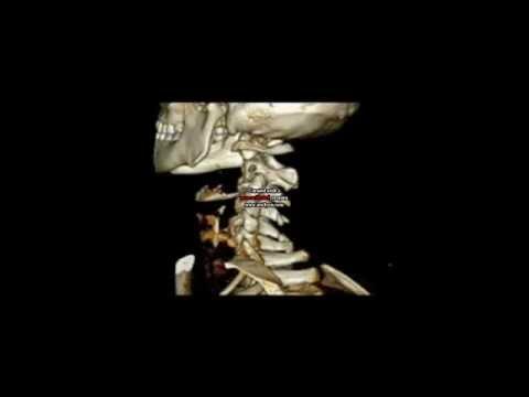 Dolore sotto le costole su entrambi i lati della schiena