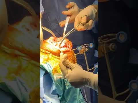Robotic knee replacement surgery | Dr Hrushikesh Saraf