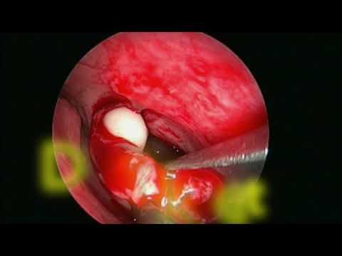 Recurrent juvenile laryngeal papillomatosis
