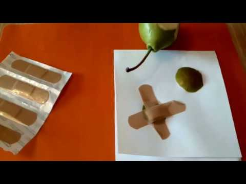 Пигментные пятна на руках витамин а