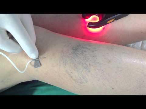 Tratamentul crioterapiei cu varicoză