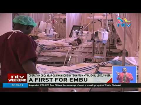 Embu level 5 hospital successfully does first kidney transplant