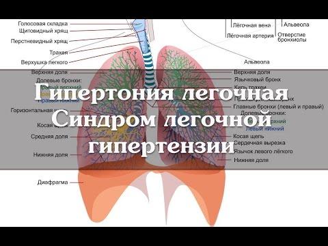 Отзывы больных гипертонией