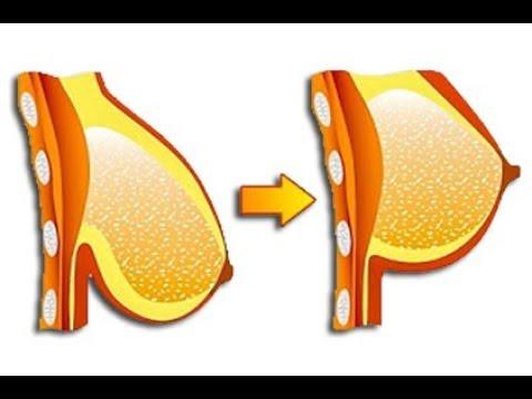 Der Plaststoff der Brust pyt