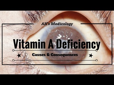 Video Vitamin A deficiency: Causes & Consequences | AK's Medicology