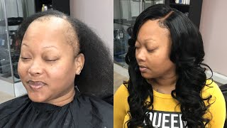 GLUELESS CLOSURE SEW IN | ALOPECIA CLIENT (Bouncy Layered Curls Tutorial )