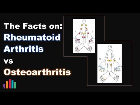 Massage der Kniearthrose