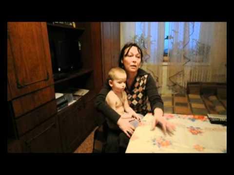 В Воронеже собака на глазах у детей порвала лицо 5-летней девочке
