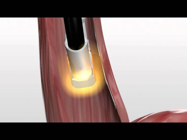Barrx™ 90 Focal Ablation Catheter