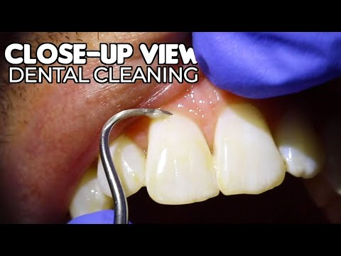 Dental Cleaning | Close-Up View (ASMR)