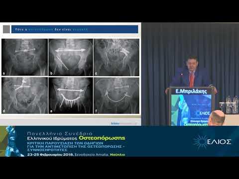 Μπριλάκης Ε. - Πότε η οστεοπόρωση δεν είναι σιωπηλή Διαγνωστική προσέγγιση
