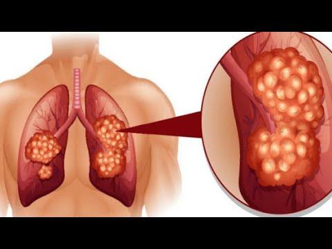 Βιοχημική ανάλυση του σακχάρου του αίματος αυξήθηκε