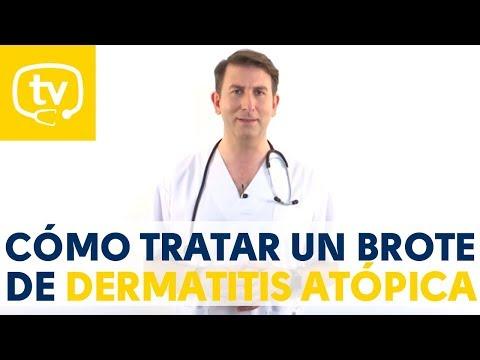 La psoriasis o la dermatitis alérgica.