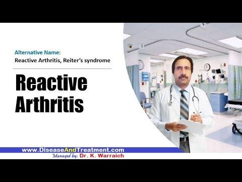 A térd akut artritiszének kezelése