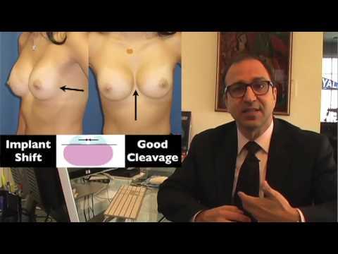Implants sa suso presyo