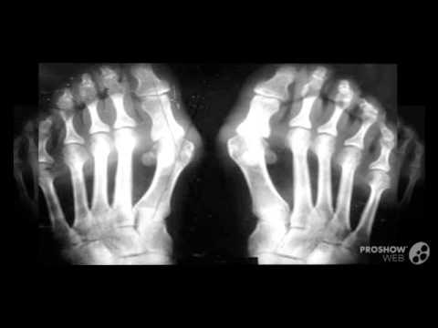 Способы лечения косточки на большом пальце ноги