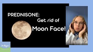 Moon 🌚 Face - How to Reduce 🌝 While on Prednisone 💊 (Side Effect)