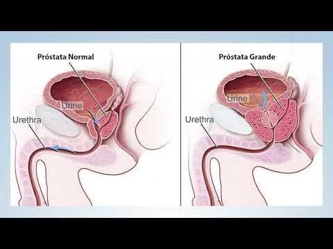 adenoma prostatico maligno sintomi