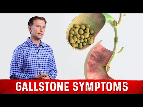 Video Gallstone Symptoms & Causes