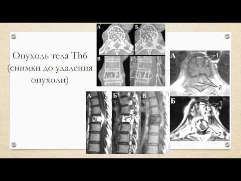 Безоперационное лечение остеохондроза