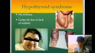 Biology- The Endocrine System