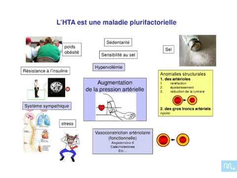 Les manifestations cliniques de lhypertension