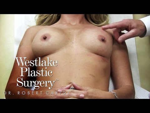 Educational Video: Breast Massage: Maximizing Symmetry