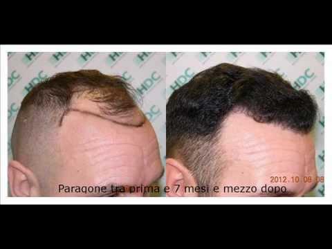 La perdita di capelli ragiona al bambino di 5 anni
