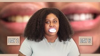 DIY AMAZON TEETH WHITENING KIT: MYSMILE
